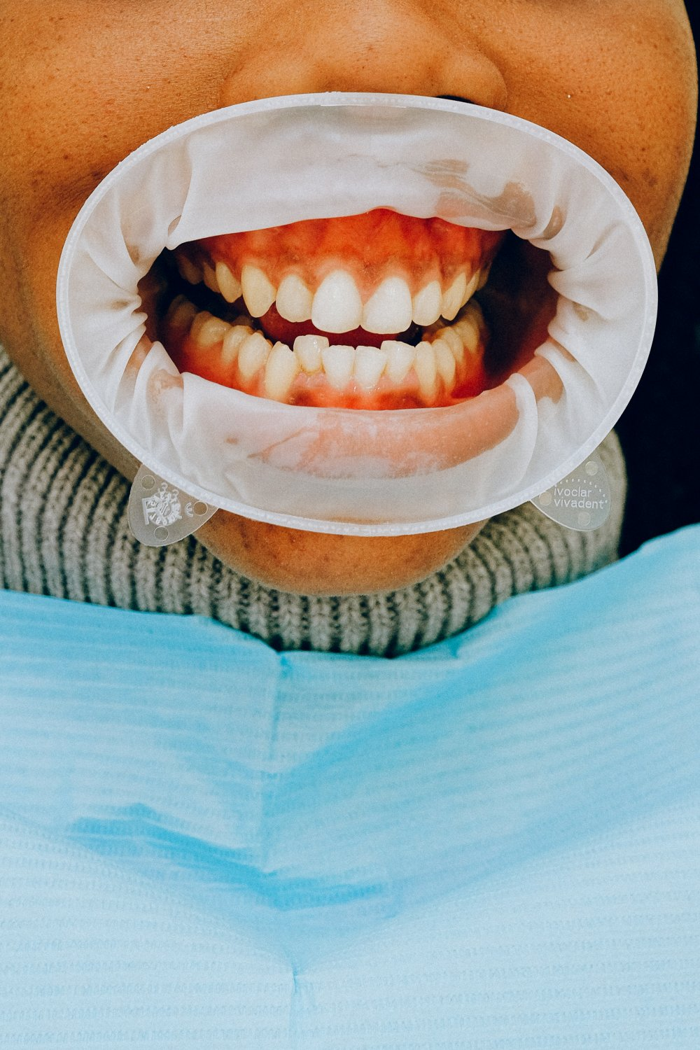Preparing for Invisalign Treatment? Read This First